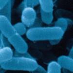 Contaminazione da listeria: allerta precauzionale del Ministero della Salute